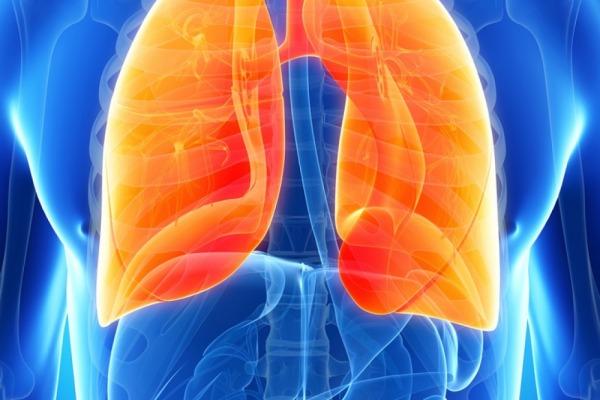 Что вызывает рак лёгких?