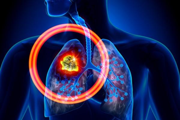 Что вызывает рак лёгких? Чего необходимо избегать?