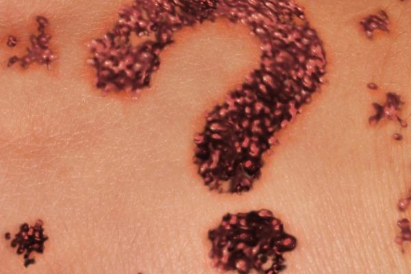 Что такое рак кожи? Причины и факторы риска